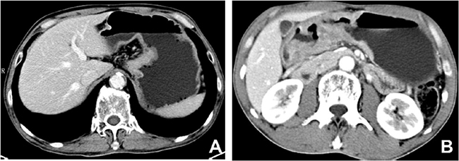 Contrast-enhanced computed tomography images of non-mucinous gastric carcinoma.