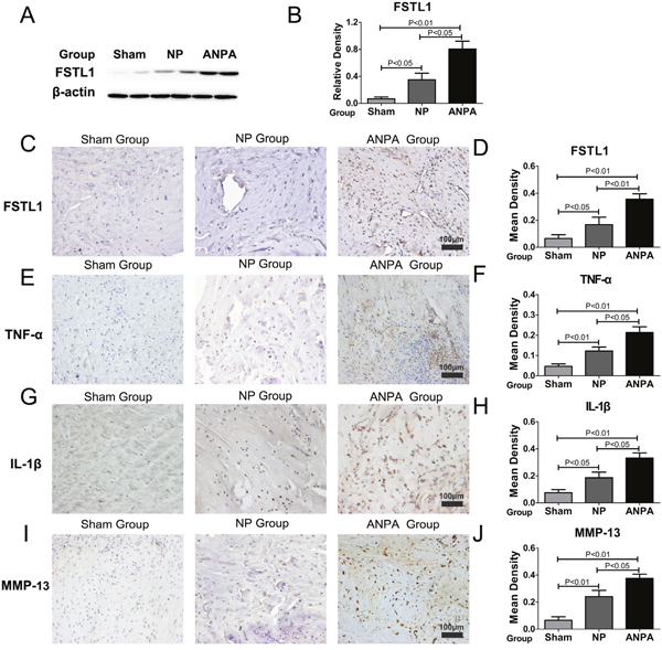 FSTL1 is highly expressed in the rat intervertebral disc degeneration model.