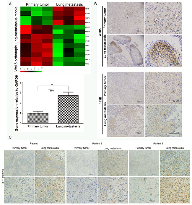 Expression of TSP1 in osteosarcoma tissues.