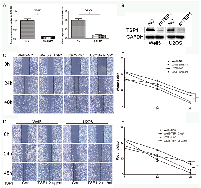 Effects of TSP1 on wound healing in osteosarcoma cells.