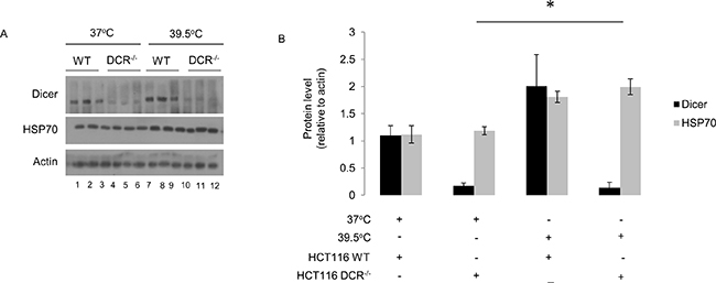 Elevated dicer protein levels observed during mild (39.5°C) hyperthermia-induced thermotolerance are not linked to HSP70 protein levels.