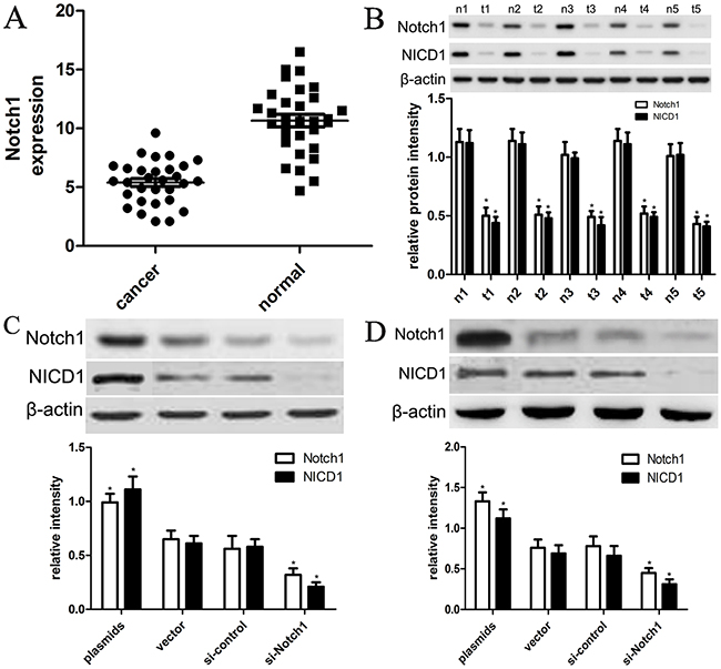 The expression of Notch1 and NICD1 in liver cancer tissues and cells.