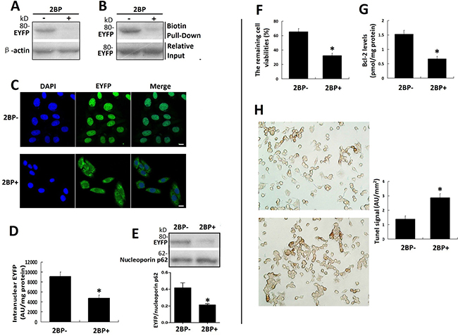 Palmitoylation inhibitor 2-BP inhibited the nuclear translocation of VPAC1-EYFP and the anti-apoptotic activity of VPAC1-CHO cells synchronously.