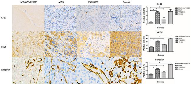 Immunohistochemical analyses for tumor tissues.