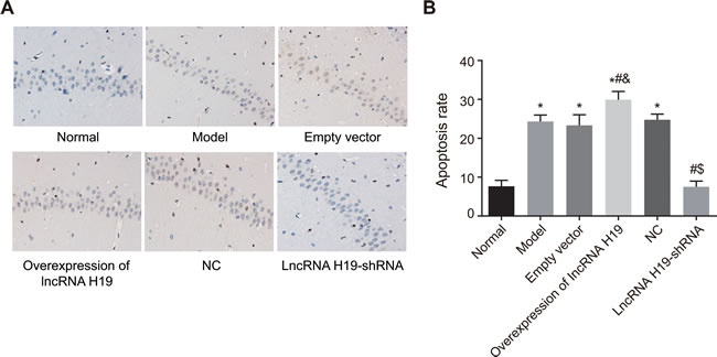 The apoptosis of hippocampal neurons of rats in each group was detected by TUNEL assay (×100).