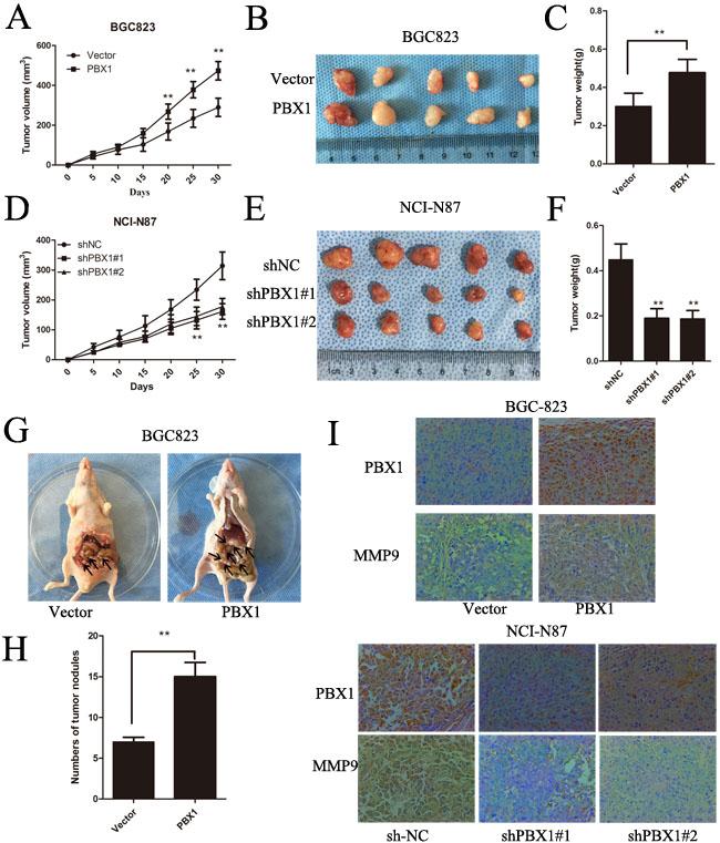 PBX1 promotes GC tumor growth and peritoneal metastasis