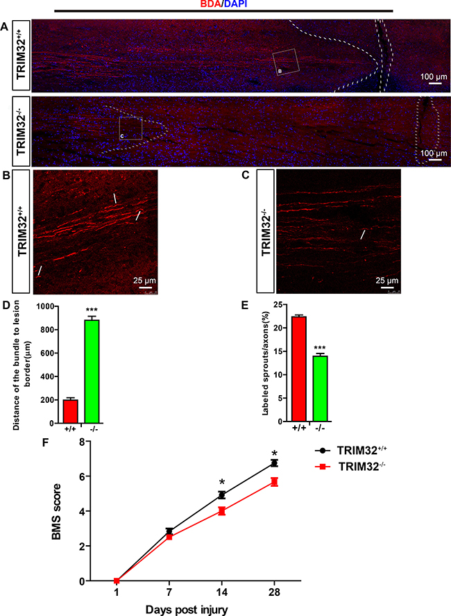 TRIM32–/– mice exhibited impaired axonal regeneration and behavioral recovery following spinal cord injury.