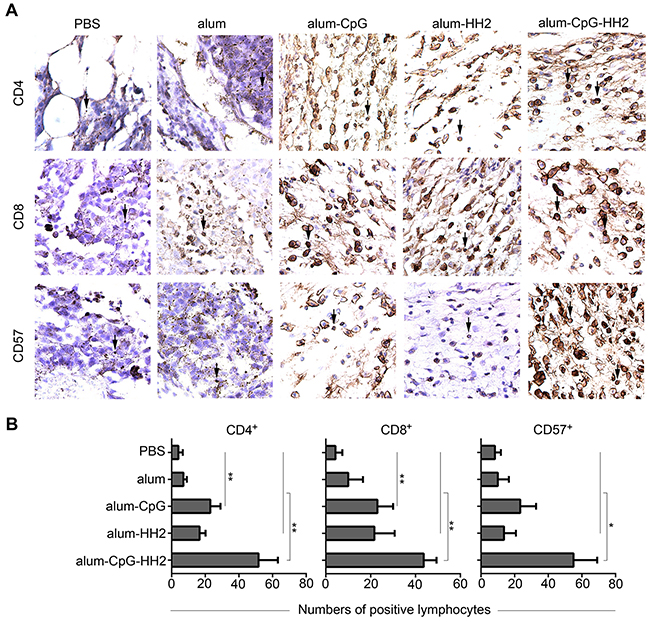 Lymphocyte infiltration in mice melanoma model by immunohistochemistry analyses.