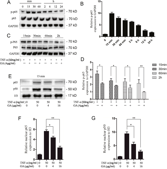 GA inhibits p65 phosphorylation and p65-p50 intranuclear.