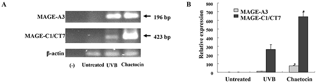 Chaetocin produces the highest expression of MAGE-A3, and MAGE-C1/CT7 in dying myeloma cells.
