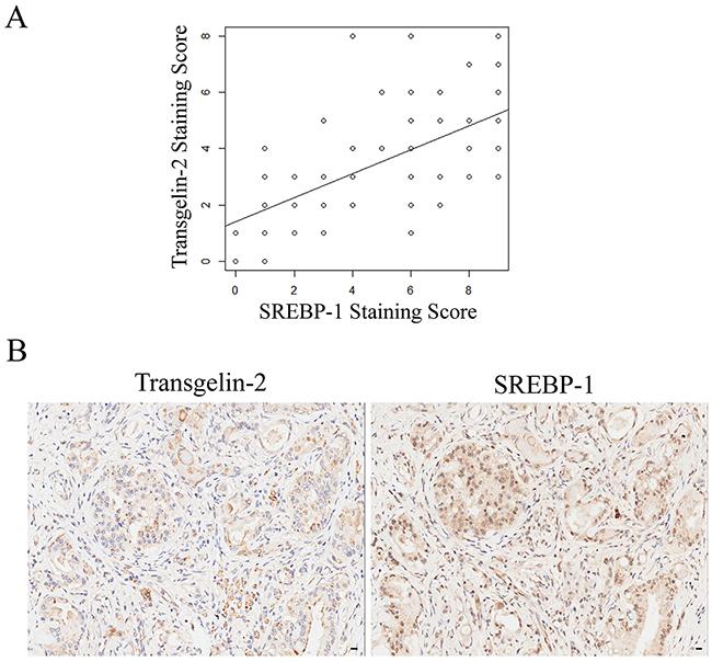 Correlation between transgelin-2 and SREBP-1.