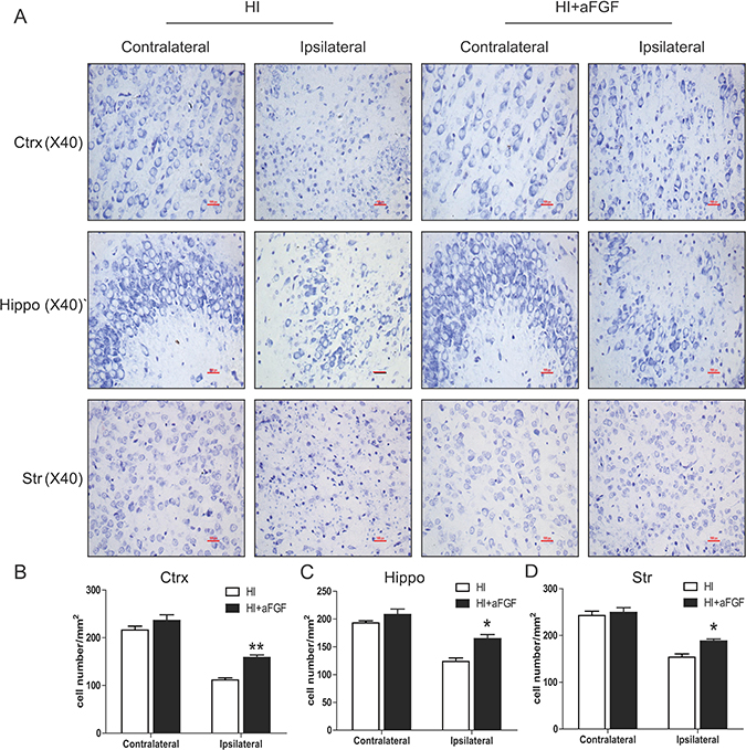 aFGF attenuates HI-induced neuronal cell death.