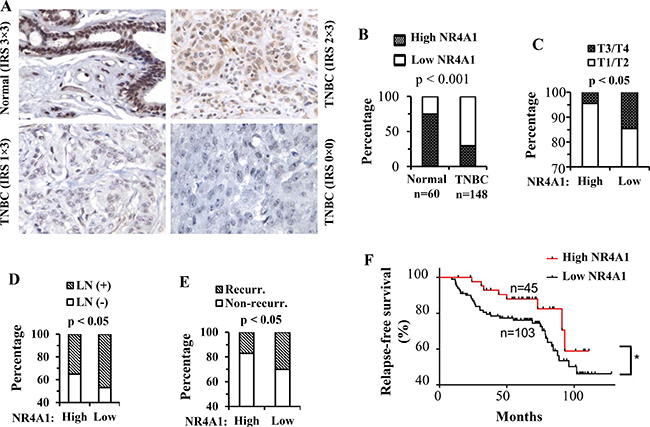 NR4A1 protein in human TNBC and its association with clinicopathological characteristics and disease recurrence.