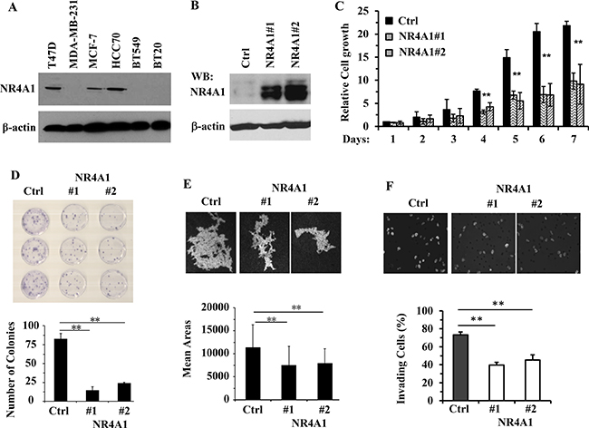 NR4A1 expression inhibits the growth, viability, migration and invasion of MDA-MB-231 cells.
