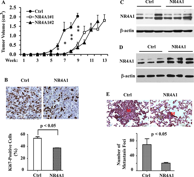 NR4A1 expression inhibits tumor growth and suppresses lung metastasis in SCID mice.