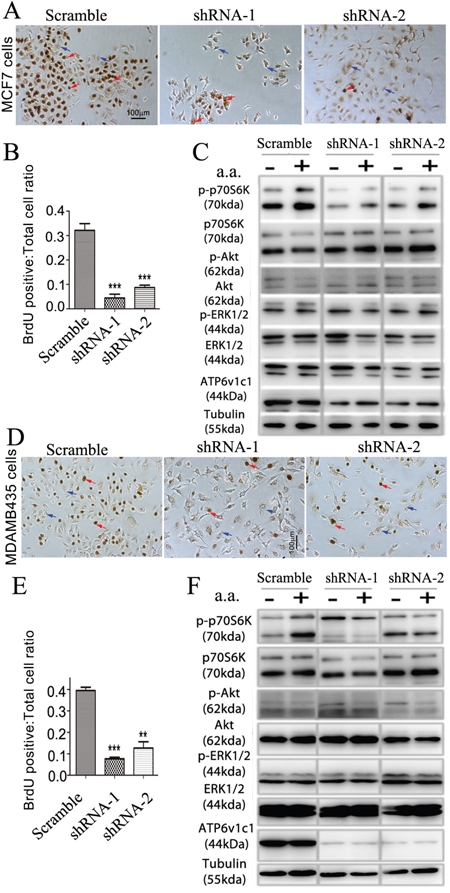 ATP6V1C1 enhances human breast cancer proliferation in cell lines with high and low metastatic potential through mTOR pathway activation stimulated by amino acids.