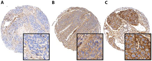 PD-L1 immunohistochemistry in HNSCC.