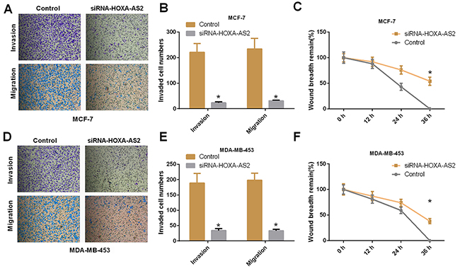 Silencing of HOXA-AS2 expression inhibits migration and invasion of breast cancer cells.