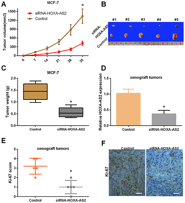Silencing of HOXA-AS2 expression suppresses tumor growth and inhibits Ki-67 expression in vivo.