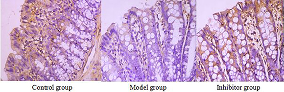 The expression of AQP1 in the colon by immunohistochemical technique (*400) AQP1 positive reaction material presents brown, the cell membrane and cytoplasm were dyed.
