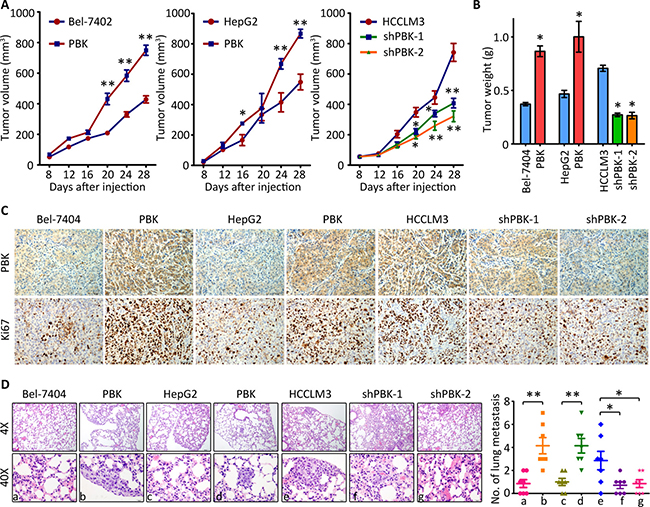 PBK enhances tumor growth and metastasis in vivo.