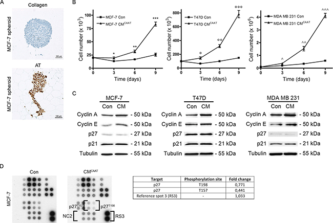 CAAT stimulates proliferation of breast cancer cells.