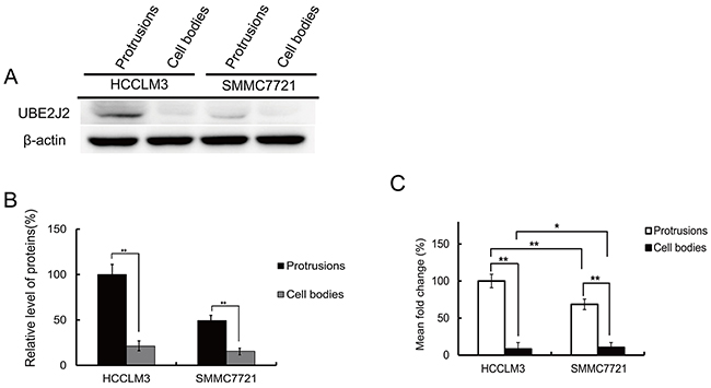 Oncotarget   UBE2J2 promotes hepatocellular carcinoma cell