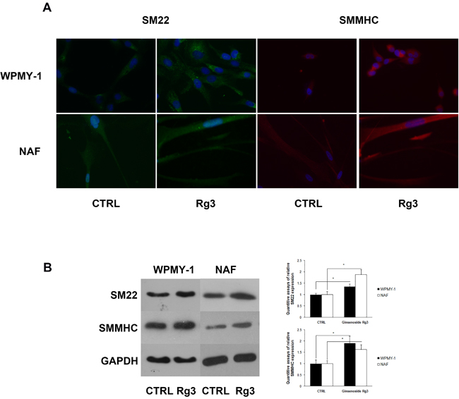 Ginsenoside Rg3 increased SM22 and SMMHC expression in WPMY-1 and NAF cells.