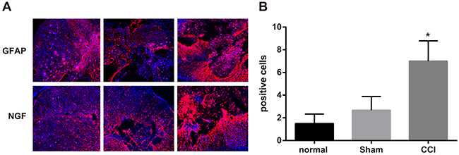 Expressions of glial fibrillary acidic protein (GFAP) and nerve growth factor (NGF) detected by immunofluorescence assay among the control, sham and chronic constriction injury (CCI) groups.