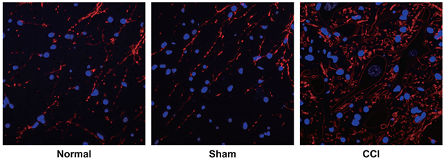 Observation of sympathetic sprouting-produced basket-like structure in dorsal root ganglion (DRG) of rats by tyrosine hydroxylase (TH) immunofluorescence staining among the control, sham and chronic constriction injury (CCI) groups.
