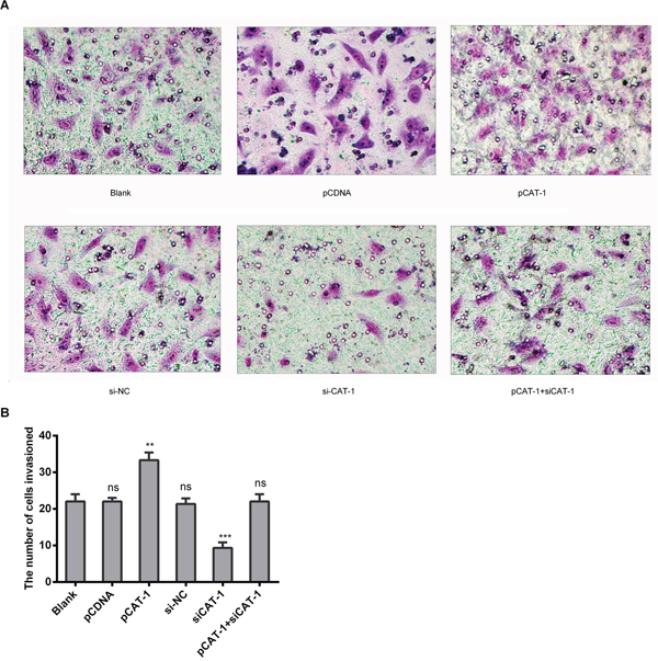CAT-1 increases HCC cell invasive ability.