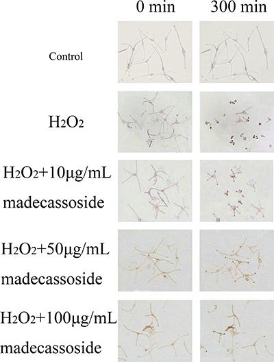 Effect of madecassoside on H2O2-treated human melanocytes.