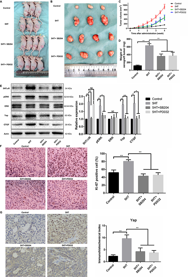The 5-HT-Yap axis promoted the malignant biological behavior of hepatoma cells by activating Yap in vivo.