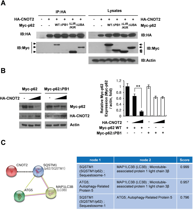 The pivotal role of p62 PB1 domain in CNOT2 induced degradation of p62/SQSTM1 and the effect of autophagy inhibitors on sub G1 population.