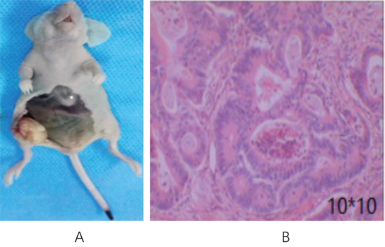 Transplanted tumor in nude mice inoculated with CD133+ HT29 colon carcinoma cells.