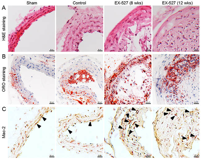 EX-527 administration promoted AS and enhanced macrophage infiltration in ApoE-/- mice.