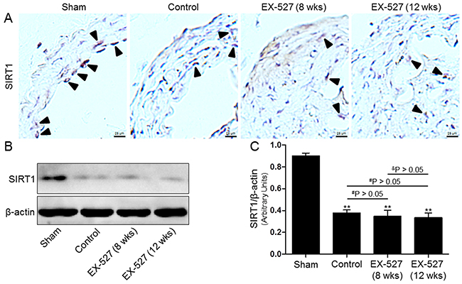 EX-527 administration inhibited SIRT1 expression in the collared carotid artery of ApoE-/- mice.