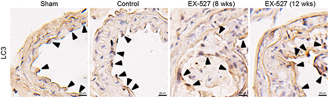 EX-527 treatment did not further change LC3 expression in the collared carotid artery of ApoE-/- mice.