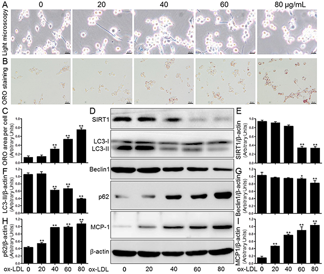 Ox-LDL induced macrophage foam cell formation, SIRT1 inhibition, autophagy impairment, and MCP-1 production in THP-1 cells.