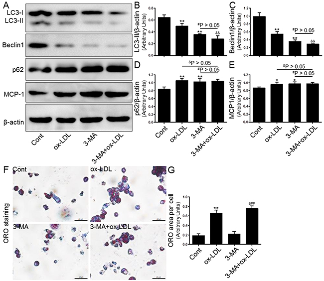 Inhibition of autophagy with 3-MA led to increased foam cell formation and MCP-1 production.