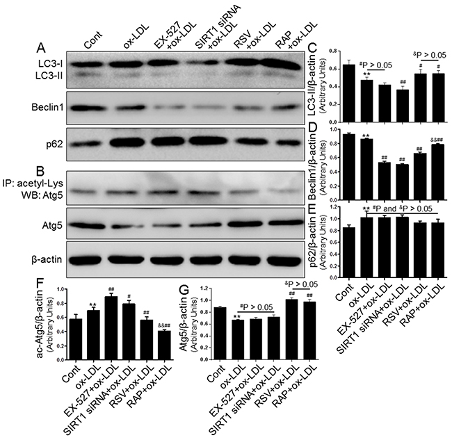 Inhibiting SIRT1 using EX-527 and SIRT1 siRNA further blocked autophagy that was down-regulated by ox-LDL exposure.