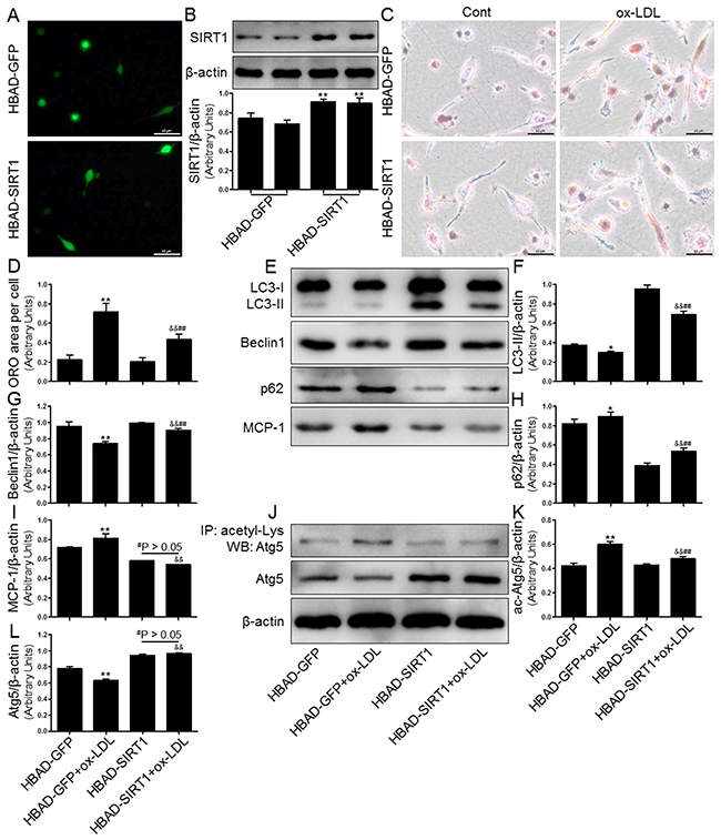 Overexpression of SIRT1 using adenoviral transfection reversed ox-LDL-induced macrophage foam cell formation and autophagy impairment in THP-1 cells.