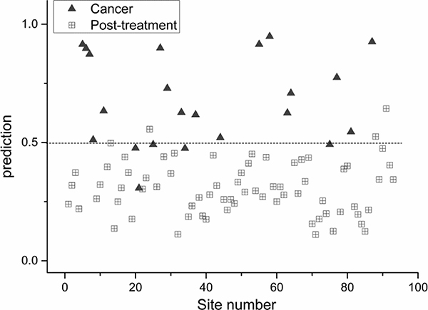 Scatter plot of the posterior probability model using partial linear square technique of patients with post-irradiated nasopharynx versus nasopharyngeal cancer (sensitivity 77%; specificity 96%).