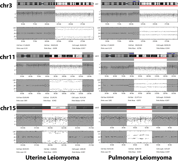 Details of the shared copy number variations identified in the uterine (left panel) and pulmonary (right panel) leiomyoma from case 2.