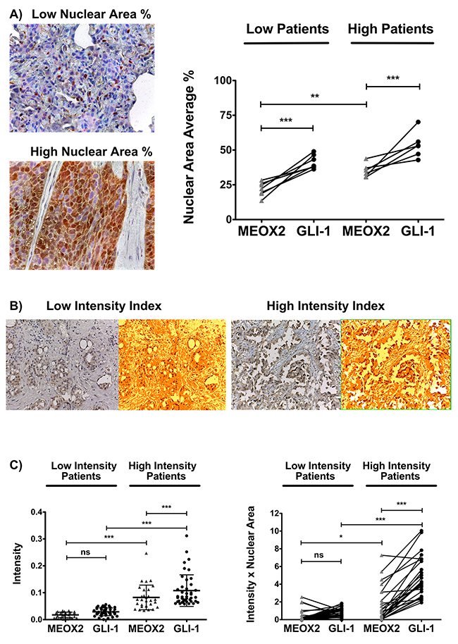 Positive MEOX2 and GLI-1 co-expression was confirmed in two lung cancer patient cohorts.