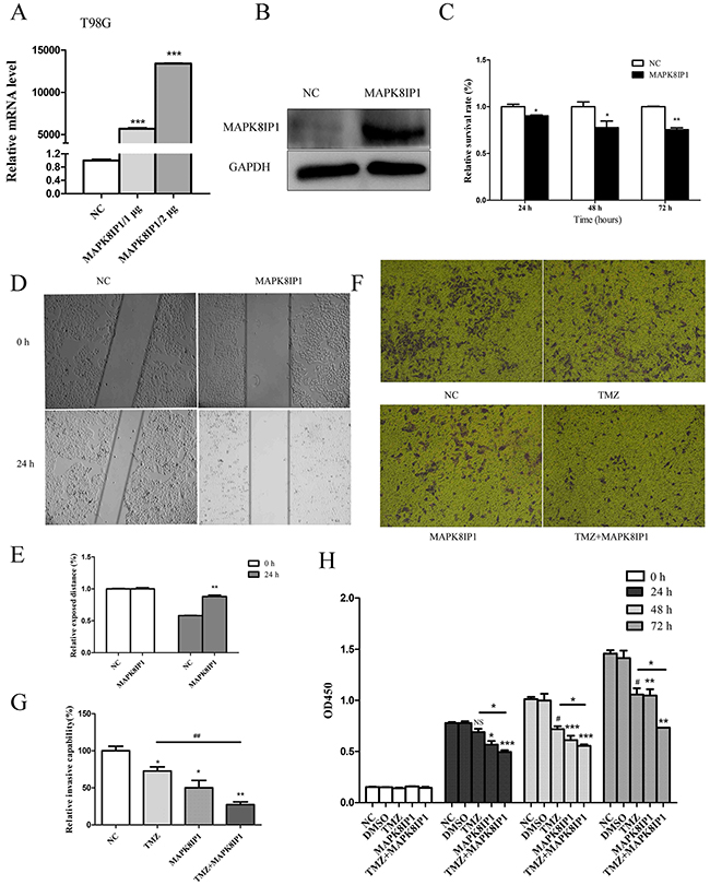 MAPK8IP1 overexpression inhibits proliferation, migration, invasion of glioma cells and improves sensitivity to Temozolomide.