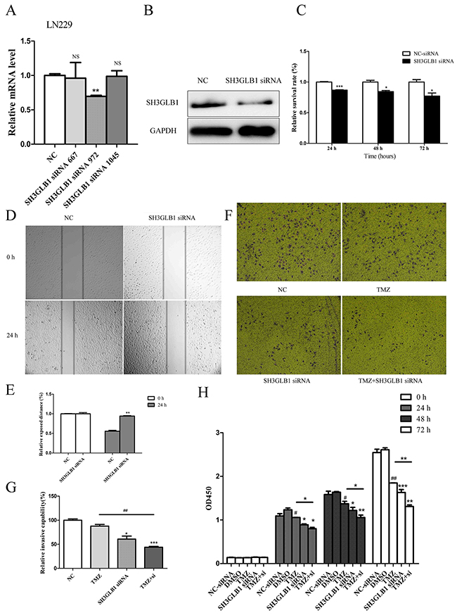 SH3GLB1 downregulation inhibits proliferation, migration and invasion of glioma cells and improves sensitivity to Temozolomide.