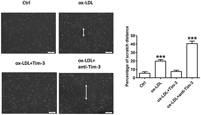 Tim-3 reverses ox-LDL-induced inhibition of HUVECs migration.