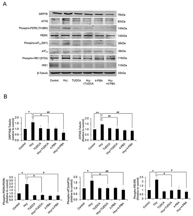 Homocysteine exposure induces ER stress in PCASMCs.