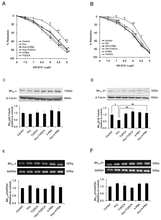 Vasorelaxant responses of PCAs to the BKCa channel activator NS1619 are attenuated after exposure to homocysteine (A, n=8) and tunicamycin (B, n=8).